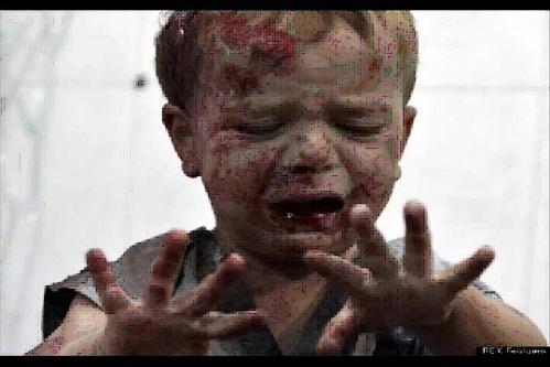 Niño Herido en Aleppo. (IImagen extraida de un Tweet de Syria --#Syria--)